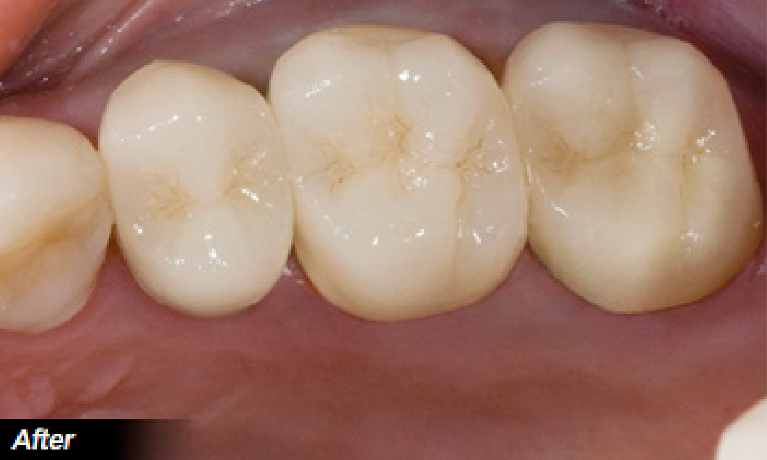 Amalgam-to-Porcelain-Restoration-After-Image