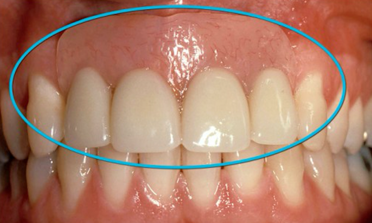 Removable-Partial-Denture-After-Image