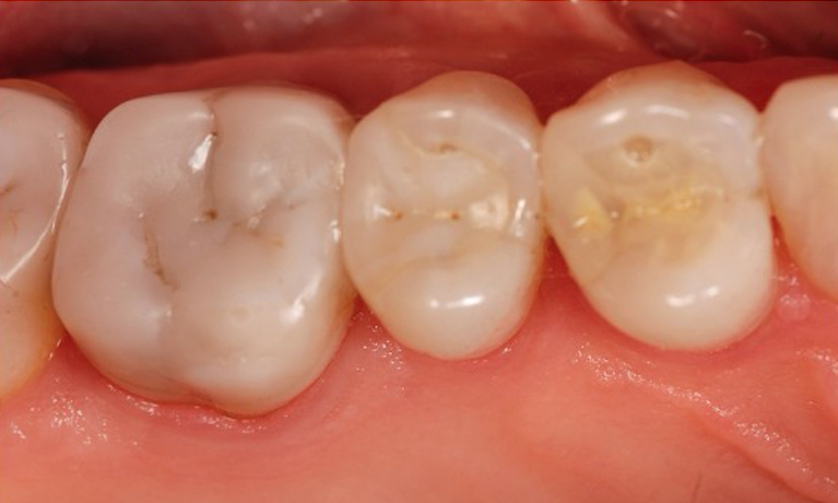 Restoration-Fillings-After-Image
