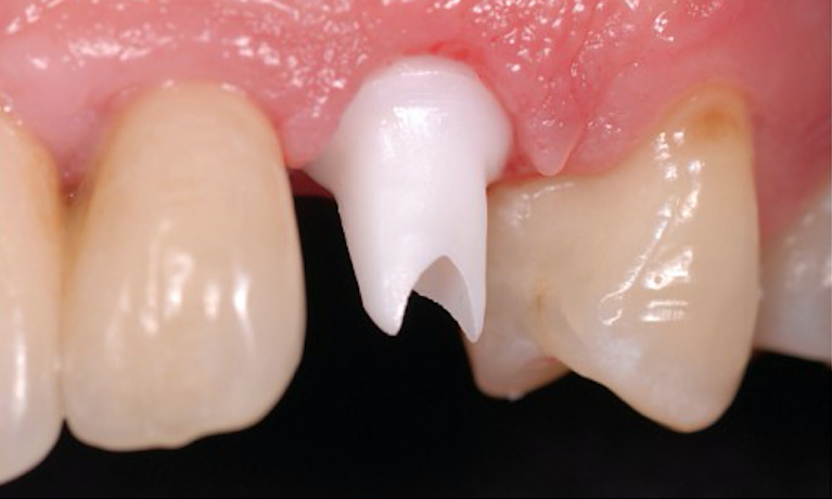 Crowns-Before-Image