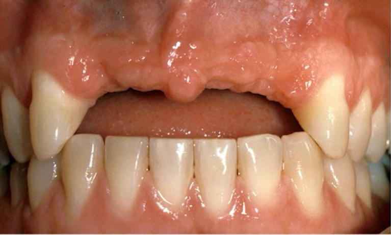 Removable-Partial-Denture-Before-Image