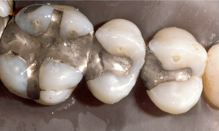 Restoration-Fillings-Before-Image