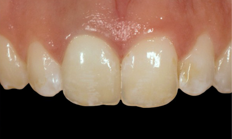 Teeth-Whitening-After-Image