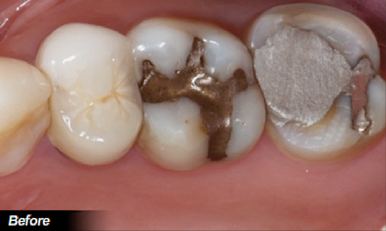 Amalgam-to-Porcelain-Restoration-Before-Image